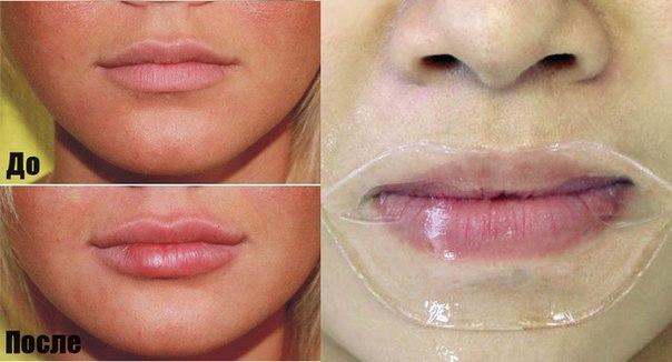 Увеличение губ в домашних условиях народными 654