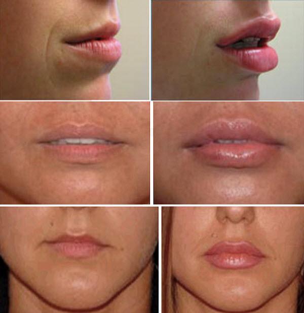 Какой филлер лучше для увеличения губ?