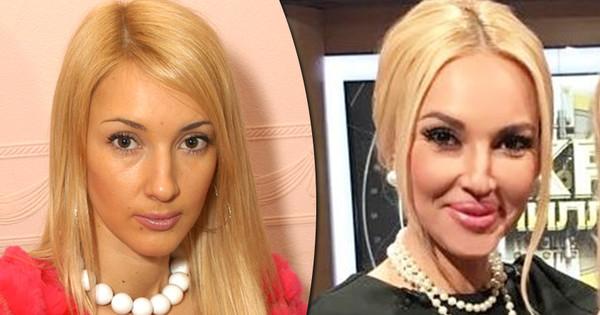 Фото до и после знаменитостей с Парижскими губами