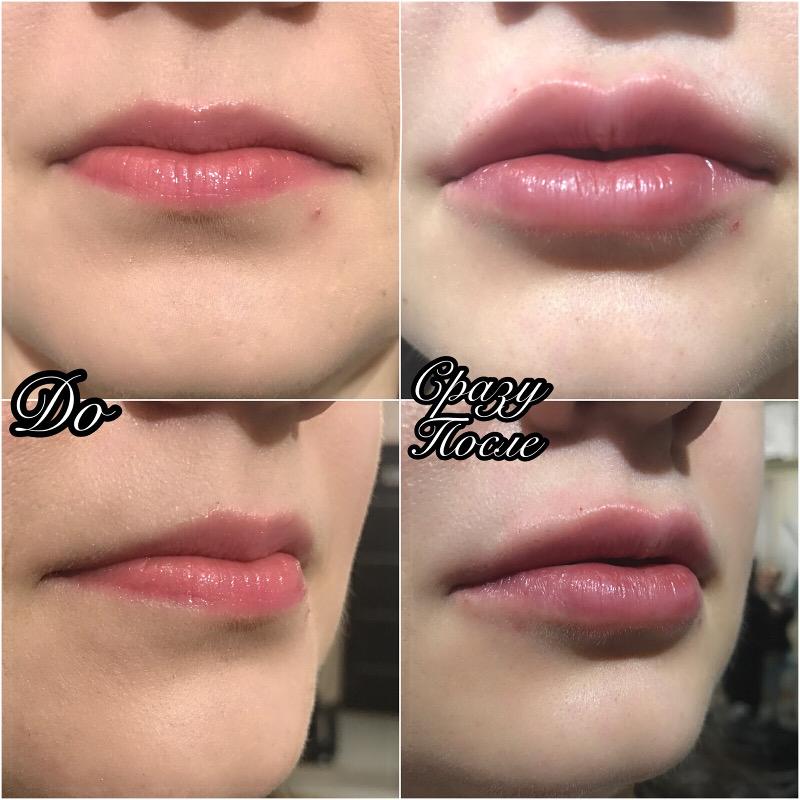 Возможные последствия увеличения губ гиалуроновой кислотой
