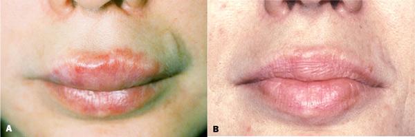 Болят губы после минета