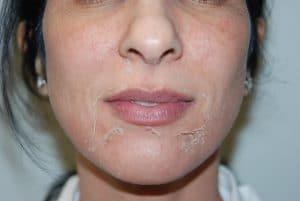 Негативные отзывы о кислотах в уходе за кожей