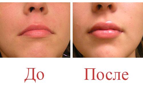 Сколько гиалуроновой кислоты нужно для губ