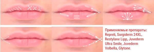 Как проходит процедура увеличения губ?