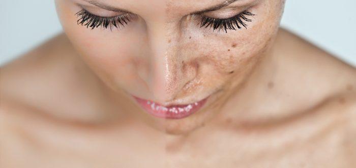 Уход после пилинга лица за кожей