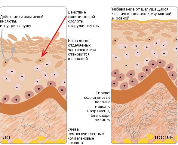 Как действует пилинг на кожу