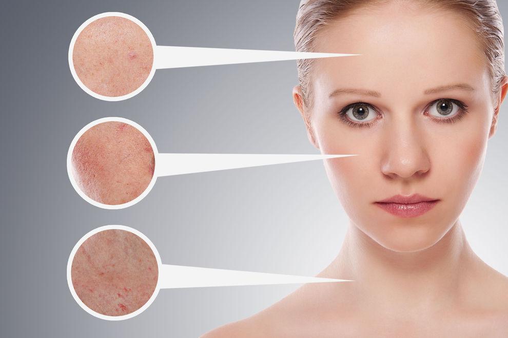 Особенности антивозрастного ухода за проблемными типами кожи