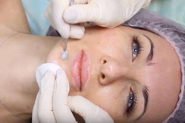 Уход за кожей после механической чистки лица