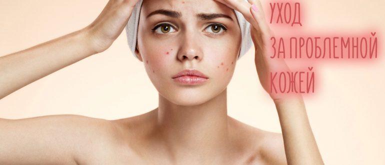 Уход за проблемной кожей лица в домашних условиях – бюджетные и профессиональные средства