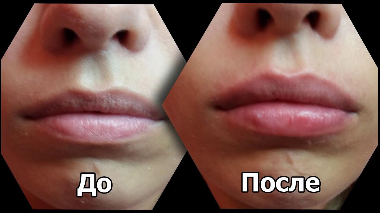 Фото до и после введения в губы 1 мл гиалуронки