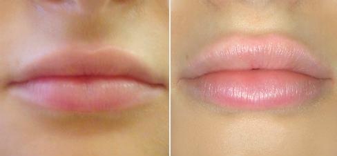 увлажнение губ гиалуроновой кислотой, фото
