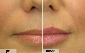 увеличение маленьких губ