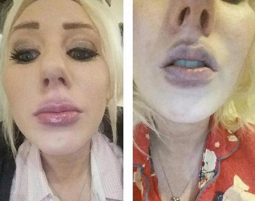 Помпа для увеличения губ