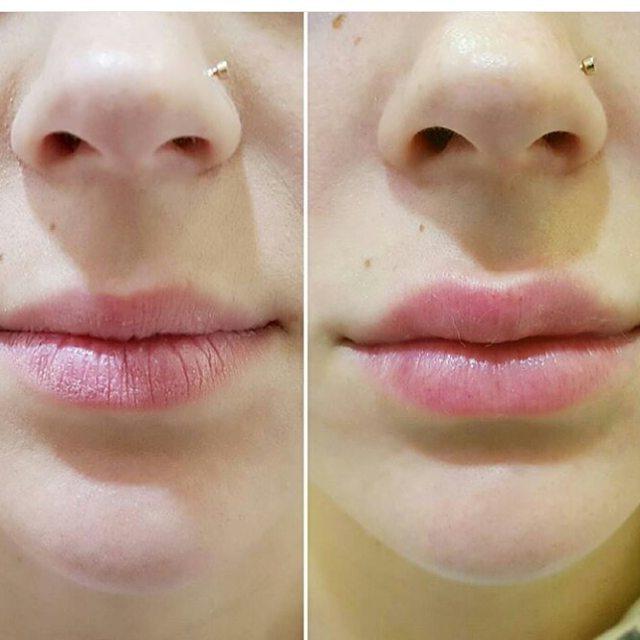 Фото после увеличения губ гиалуроновой кислотой