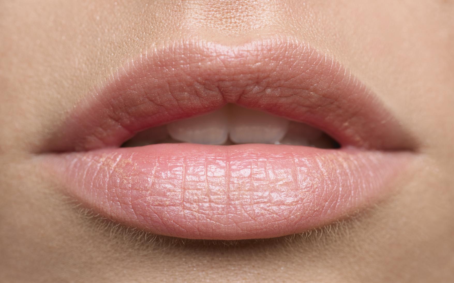 Как подготовиться к увеличению губ гиалуроновой кислотой?
