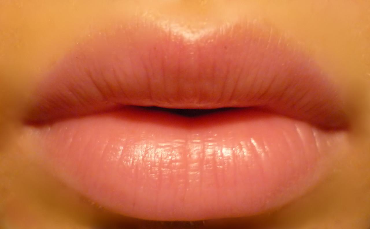 Плюсы и минусы увеличения губ гиалуроновой кислотой