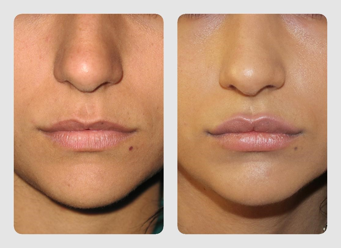 Отзывы об увеличении губ гиалуроновой кислотой