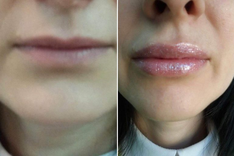 Увеличение губ отзывы о процедуре с фото