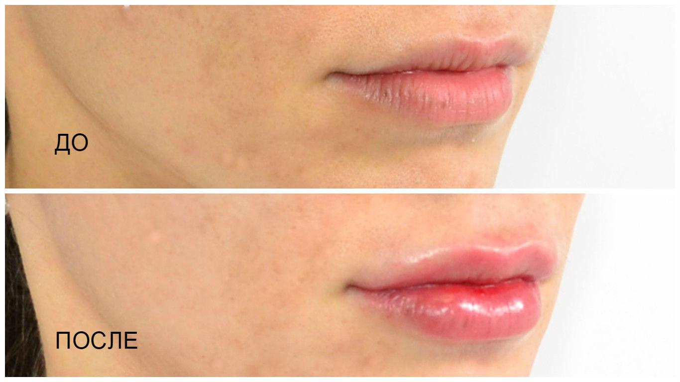 Увеличение губ гиалуроновой кислотой – фото до и после