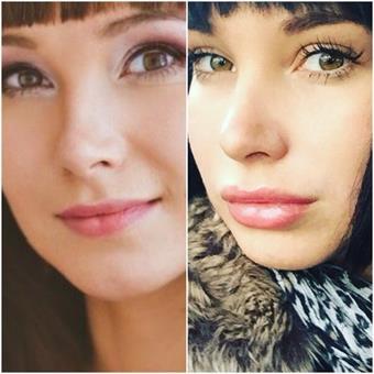 Отзывы с фото до и после инъекций Ювидерм