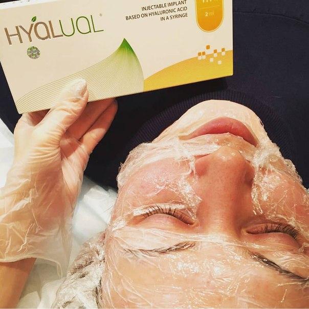 Отзывы о биоревитализации Hyalual косметологов