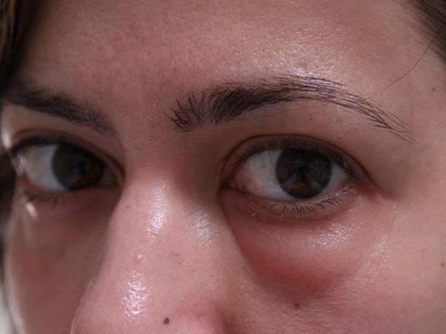 Побочные эффекты и правила ухода после биоревитализации глаз