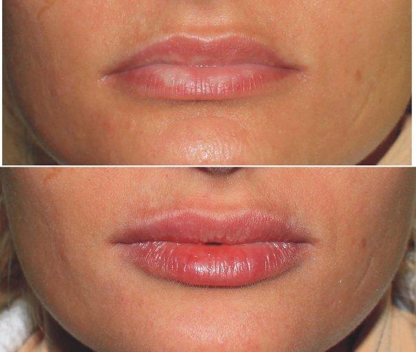 Фото до и после биоревитализации губ гиалуронкой