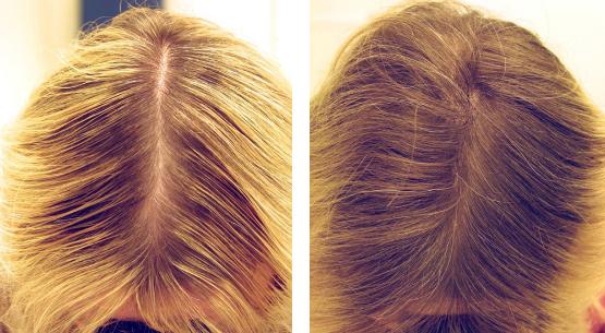 Отзывы с фото до и после биоревитализации волос