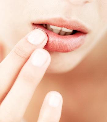 Рекомендации по уходу после увеличения губ