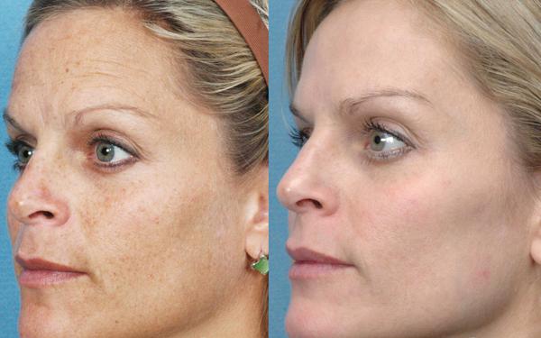 Безинъекционная биоревитализация лица – фото до и после