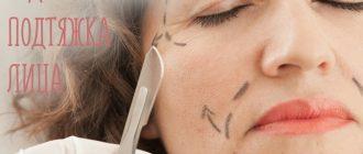 Что такое эндоскопическая подтяжка лица? Фото до и после операции, реабилитация