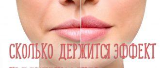 Что закачивают в губы для увеличения и сколько держится эффект?