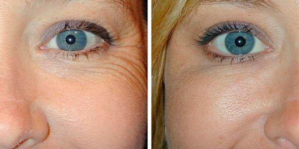 Биоревитализация глаз – фото до и после:
