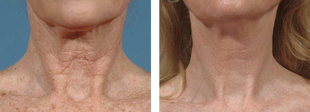Биоревитализация шеи – фото полученного результата: