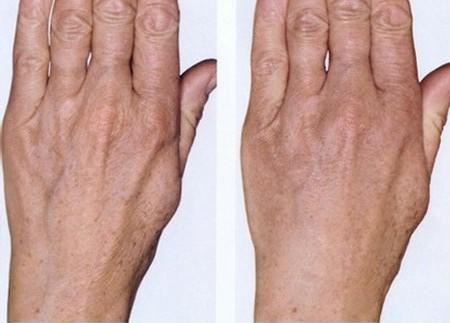Биоревитализация рук – фото: