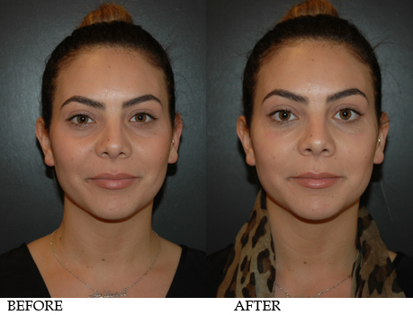 Фото до и после пластики гиалуроновой кислотой