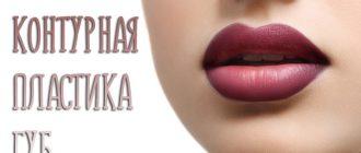 Контурная пластика губ – что это такое?