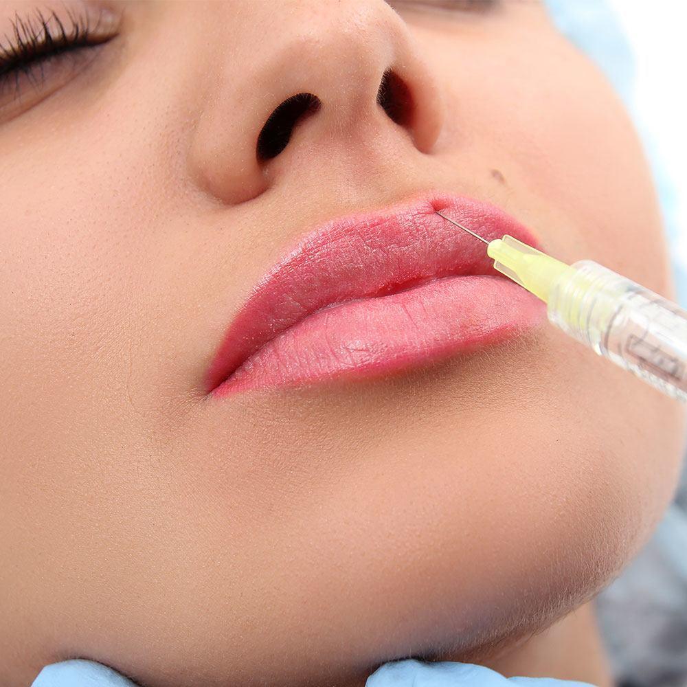 Реабилитация после контурной пластики губ