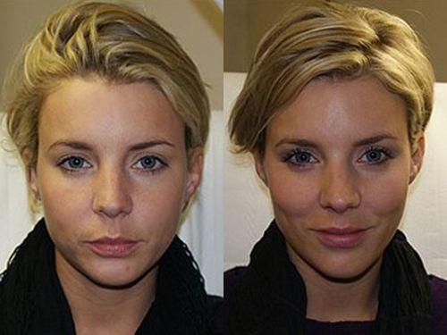 Фото до и после контурной пластики лица