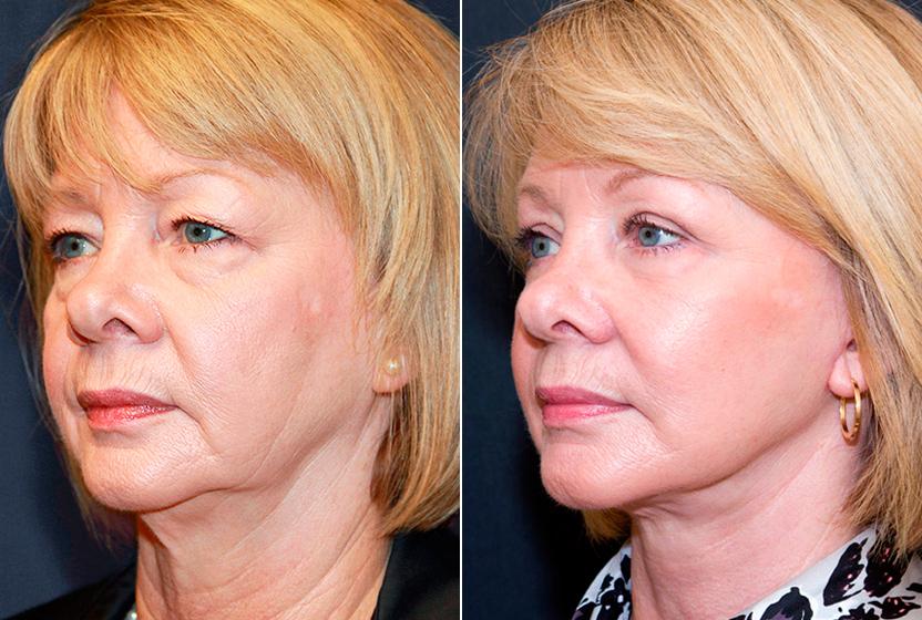 Фото до и после контурной пластики лица гиалуроновой кислотой