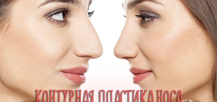 Контурная пластика носа – фото до и после