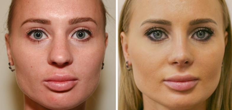Фото до и после процедуры