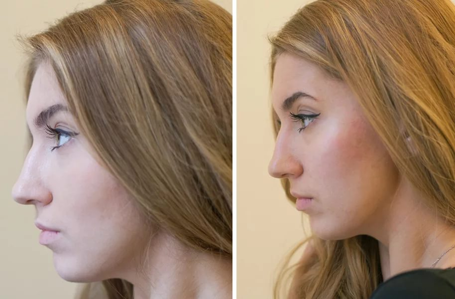 Фото до и после контурной пластики щёк