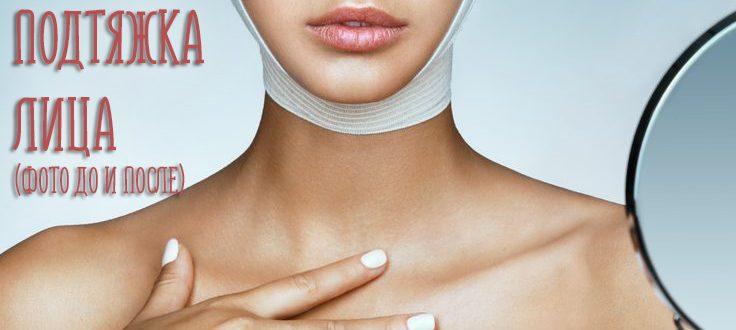 Круговая подтяжка лица. Отзывы, стоимость, фото до и после операции
