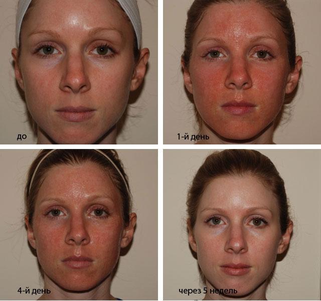 Реабилитационный период после лазерной подтяжки лица