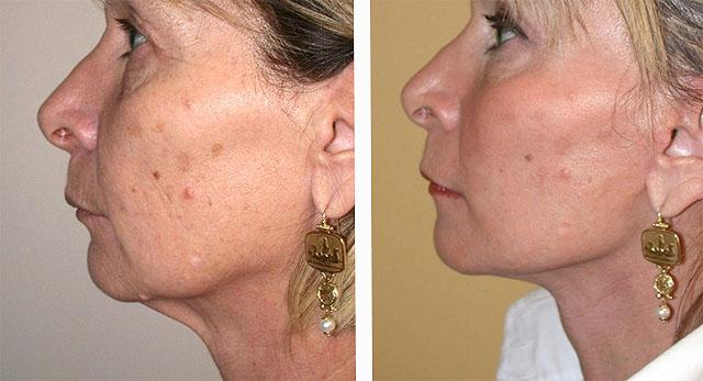 Фото до и после нитевой подтяжки лица