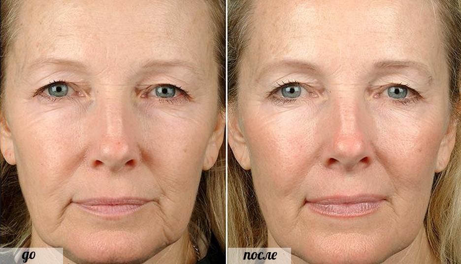 Фото до и после процедур