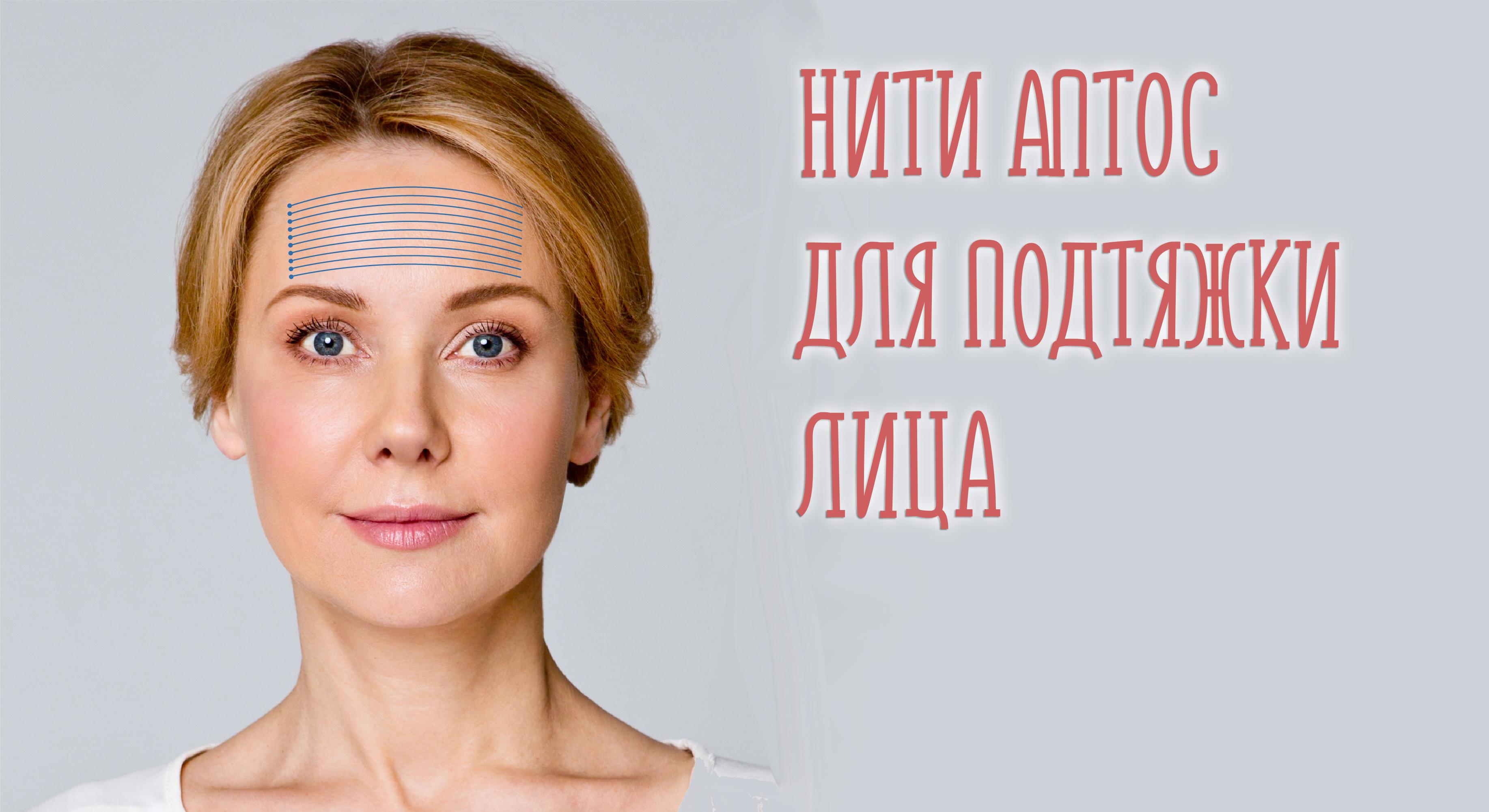 Нити Aptos и хирургическая круговая подтяжка лица. Виды, действие и отзывы