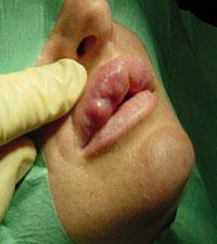 Гранулёмы и фиброзные капсулы