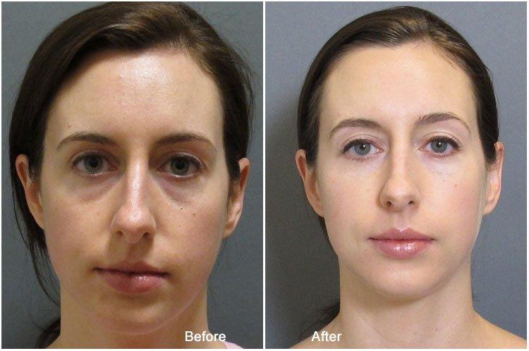 Фото до и после приема препарата